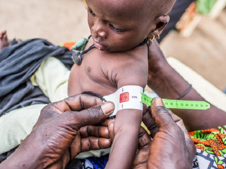 15% बच्चों को आज भी मां के पेट से ही कुपोषण, वजह- 10 सालों में लो बर्थ वेट में 5% की ही कमी|भिलाई,Bhilai - Dainik Bhaskar