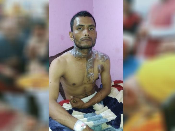 पीड़ित को इलाज के लिए उन्नाव से लखनऊ रेफर किया गया है। - Dainik Bhaskar