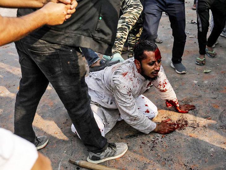 जुबैर के साथ यह घटना 24 फरवरी को हुई। इसके बाद उनकी यह फोटो वायरल हो गई।