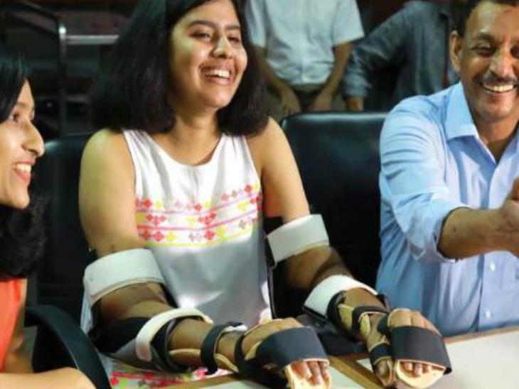 एशिया में पहली बार ट्रांसप्लांटेड हाथों का रंग तीन साल में बदला, ऑपरेशन के वक्त अलग था| - Dainik Bhaskar