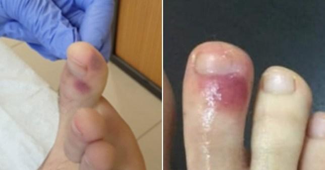 पैरों में जामुनी रंग के घाव के मामले बच्चों में अधिक सामने आ रहे हैं।