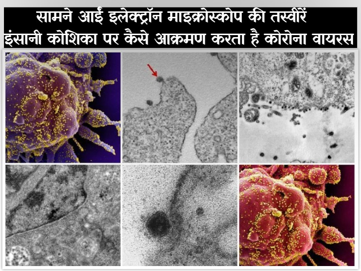 कोरोना इंसानी कोशिका को घेरकर उसमें घुस जाता है, 20 लाख गुना जूम करके उतारी तस्वीरों से पता चला|कोरोना - वैक्सीनेशन,Coronavirus - Dainik Bhaskar