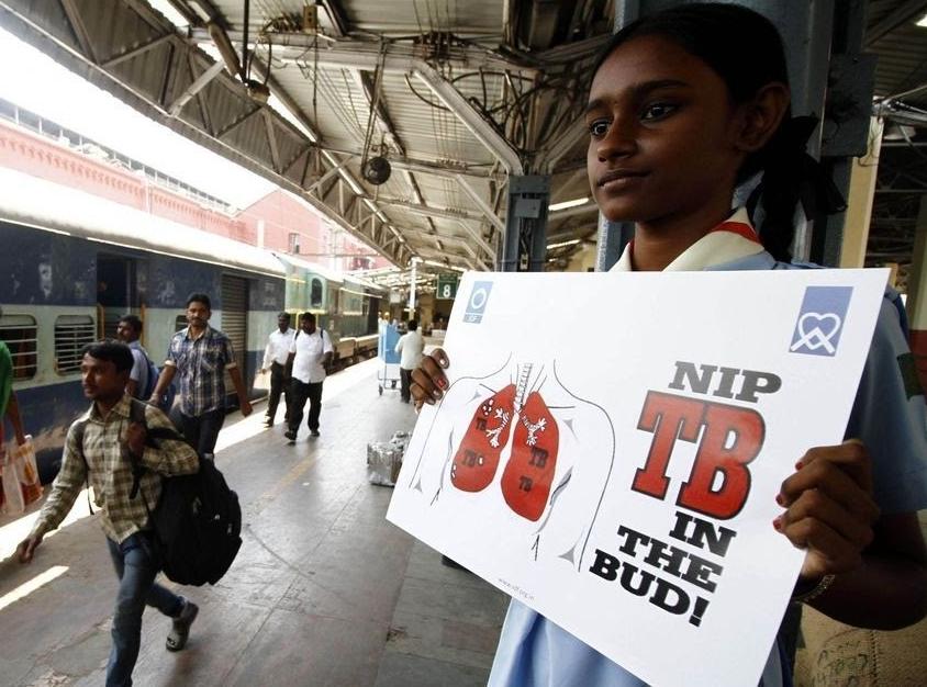 साल 2017 में भारत में 3.75 लाख मौतों का कारण टीबी ही था।