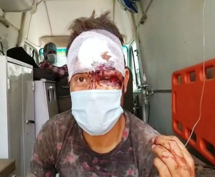 Dhananjay has an eye injury. They have also been admitted to the hospital.