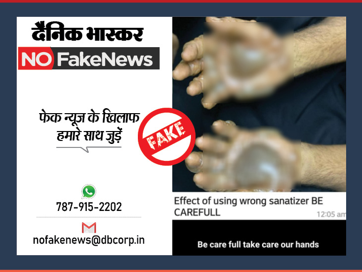 WHO ने कहा- अल्कोहल युक्त सैनेटाइजर से हाथों में जलन होने तक की कोई रिपोर्ट नहीं मिली|फेक न्यूज़ एक्सपोज़,Fake News Expose - Dainik Bhaskar