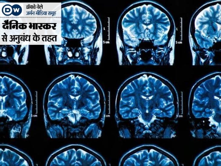 हल्के लक्षण वाले कोरोना मरीजों के दिमाग को डैमेज कर सकता है कोविड, किडनी और दिल के लिए भी घातक; 102 साल पहले स्पेनिश फ्लू में भी दिखे थे ऐसे सिम्पट्म्स|यूटिलिटी,Utility - Dainik Bhaskar