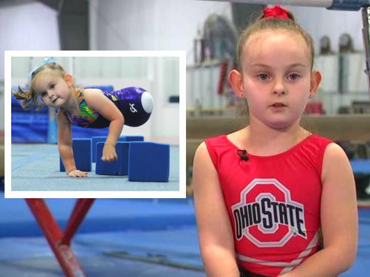 Paige Calendine; Everything You Need To Know About 8-Year-Old Gymnast Without Legs   बिना पैर के पैदा हुई 8 साल की अमेरिकी बच्ची बनी जिमनास्ट, 18 महीने की उम्र से शुरू हुई थी ट्रेनिंग ताकि शरीर मजबूत हो सके