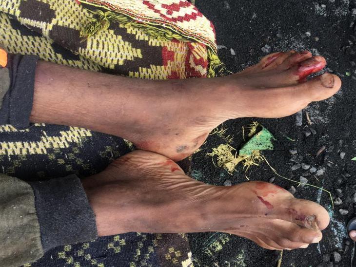 टीकम के पैर पर मारपीट के बाद जख्म के निशान हैं।
