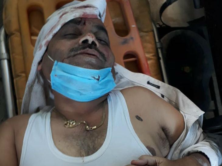 घायल राजेश मिश्र।