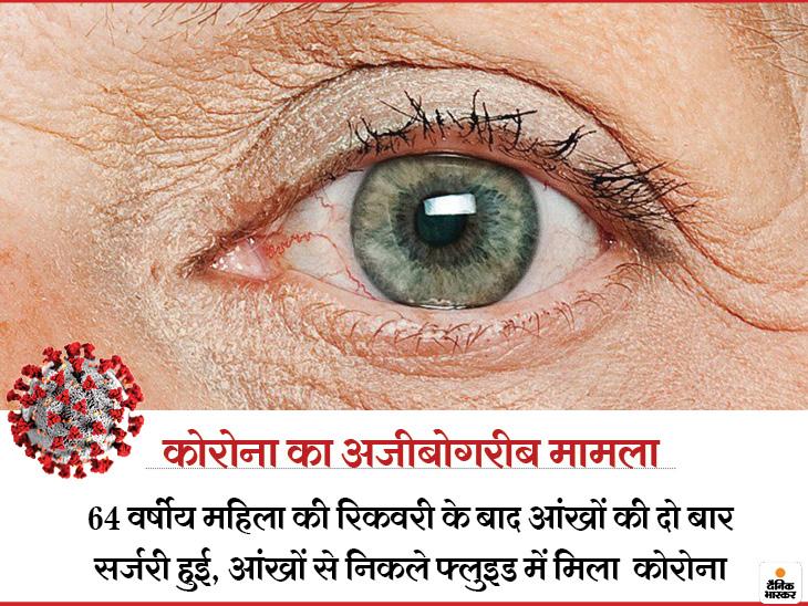 64 साल की चीनी महिला में रिकवरी के 2 माह बाद आंखों में मिला कोरोनावायरस, दर्द से जूझ रही महिला की दो बार हुई आई सर्जरी लाइफ & साइंस,Happy Life - Dainik Bhaskar