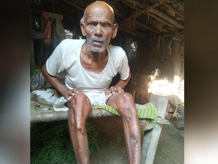 70 साल के भुवनेश्वर के भाई ने डंडे से मारकर इनका हाथ-पैर तोड़ दिया था, उसके साफ-साफ निशान अभी भी हैं, चल फिर नहीं पाते हैं। वृद्धा पत्नी ही इनका सहारा हैं।