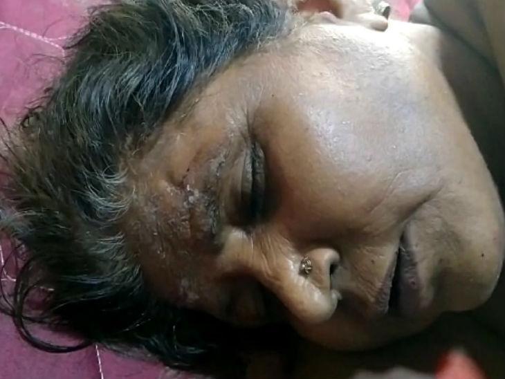 यह फोटो शाहजहांपुर की है। बुजुर्ग महिला का इलाज मेडिकल कॉलेज में चल रहा था। लेकिन, उसकी मौत हो गई। - Dainik Bhaskar