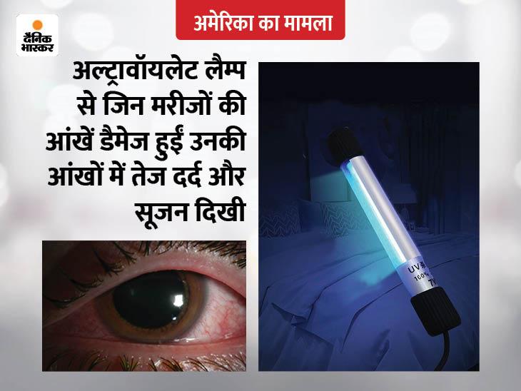 अमेरिका में अल्ट्रावॉयलेट लैम्प से घर-ऑफिस को सैनेटाइज करने में 7 लोगों की आंखें डैमेज हुईं लाइफ & साइंस,Happy Life - Dainik Bhaskar