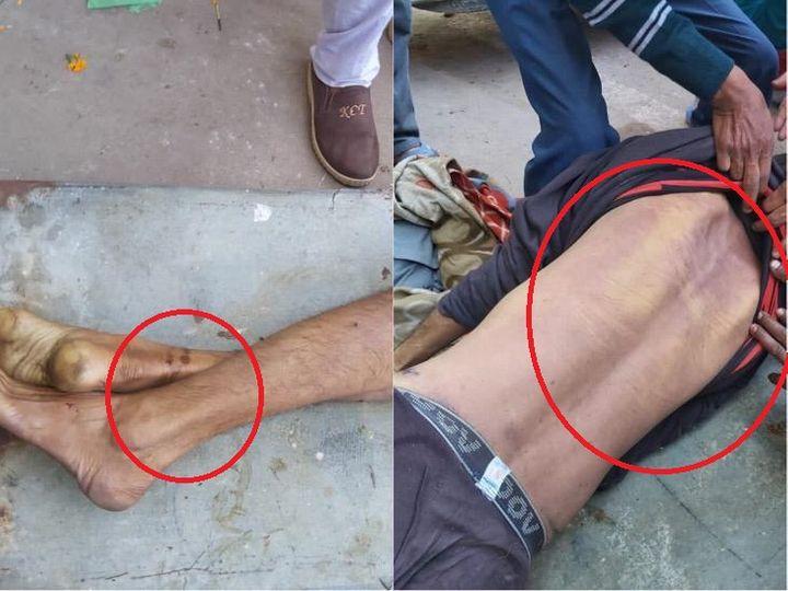 राजेश के शरीर पर बने जख्म।