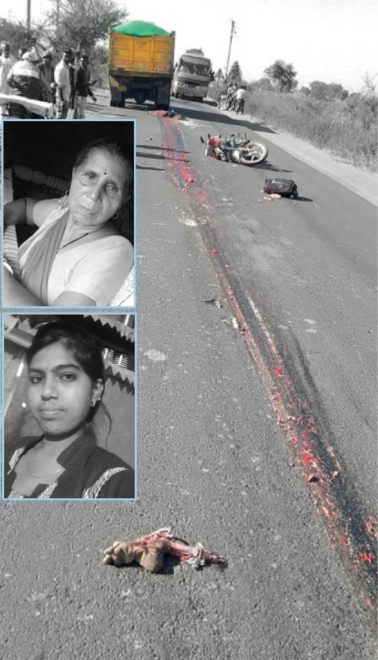 दुर्घटना इतनी विभत्स थी कि जहां टक्कर मारी, वहीं पर महिला का पैर अलग होकर गिर गया।