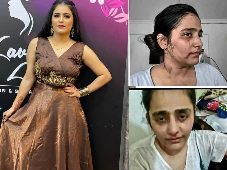 कृष्णदासी फेम प्रिटी का पति पर आरोप- मस्जिद में शादी की लेकिन नाम नहीं बदला, अब पति मारपीट कर रहा|टीवी,TV - Dainik Bhaskar