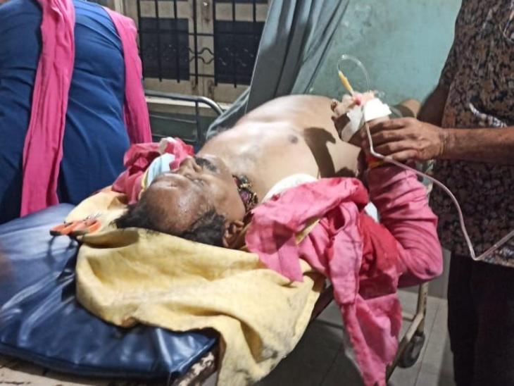 आयुष मंत्री सड़क हादसे में घायल: कर्नाटक के अंकोला में श्रीपद नाइक की कार पलटी, पत्नी और पीए की मौत; मंत्री की हालत खतरे से बाहर