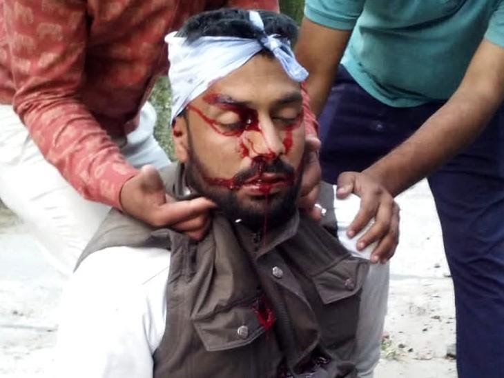 हादसे में घायल भूपेंद्र सिंह को लोगों ने अस्पताल पहुंचाया, जहां डॉक्टरों ने उसे मृत घोषित कर दिया।