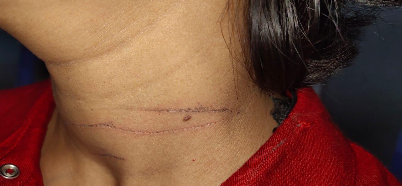 गर्दन पर मांझा से गर्दन पर पड़ा निशान।