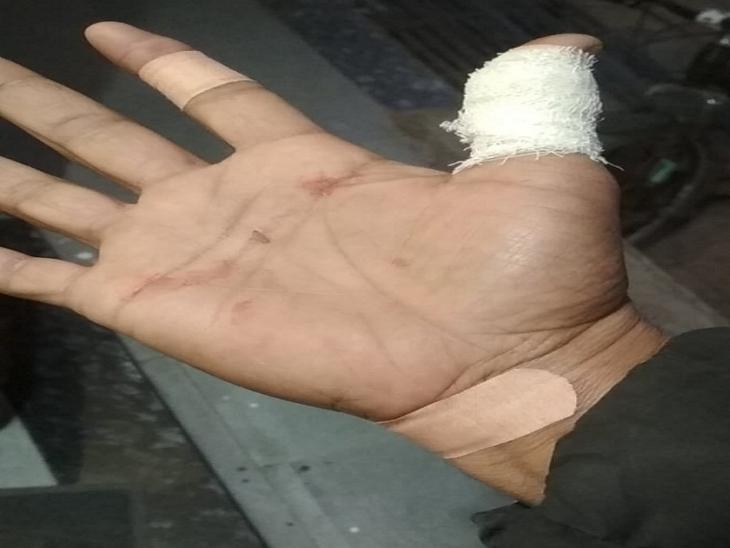 बाइक सवार के हाथ में डोर से चोट आई।