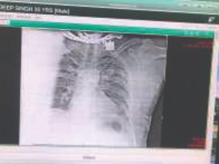 कुलदीप सिंह को गोली रीढ़ की हड्डी के डी-5 एरिया में लगी।