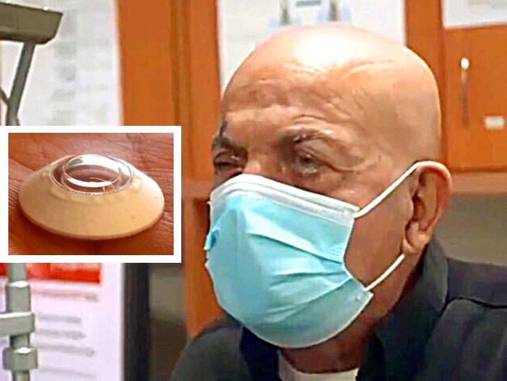 10 साल बाद 78 वर्षीय जमाल की आंखों को मिली रोशनी, लगाया गया आर्टिफिशियल कॉर्निया इम्प्लांट|लाइफ & साइंस,Happy Life - Dainik Bhaskar