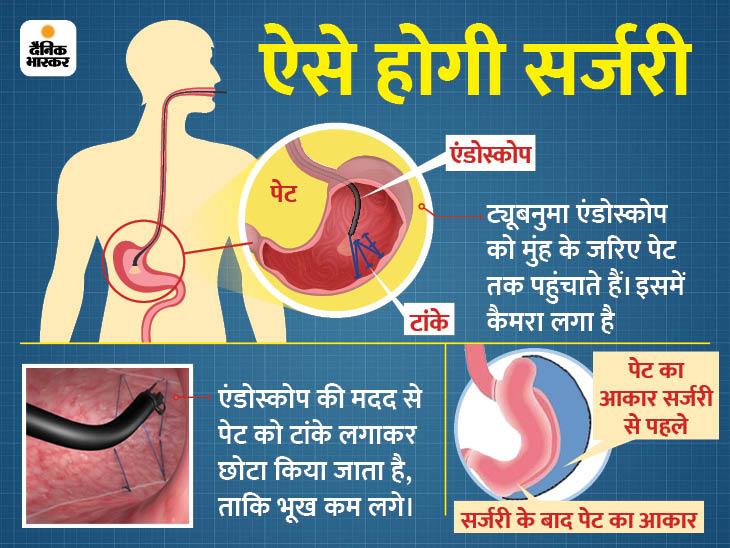पेट का आकार छोटा करके वजन को घटाने वाली सर्जरी, दावा; 30 किलो तक घटा सकेंगे वजन|लाइफ & साइंस,Happy Life - Dainik Bhaskar