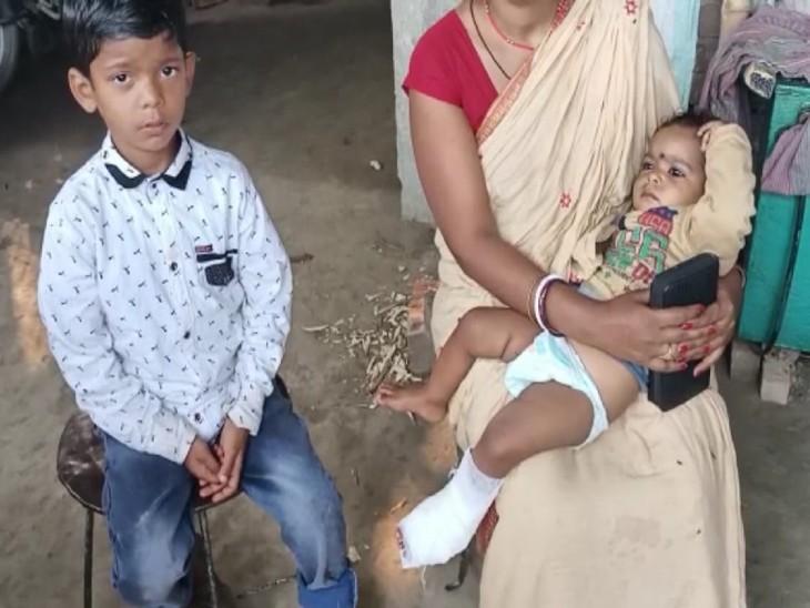 गोद में बैठी बच्ची का हादसे में पैर टूट गया।
