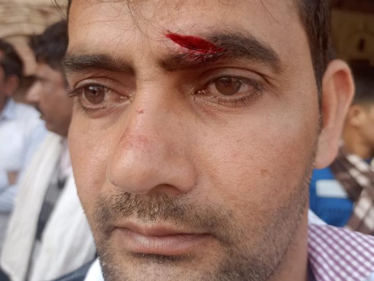जयंत चौधरी ने अपने ट्विटर हैंडल पर एक फोटो शेयर की है। तस्वीर में दिख रहे युवक को उन्होंने भाजपा कार्यकर्ताओं से हुई झड़प में घायल किसान बताया है।