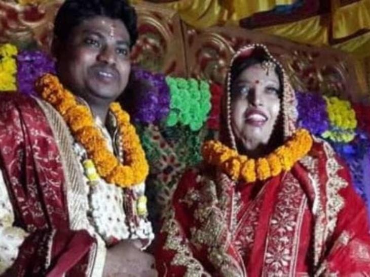 एसिड अटैक सर्वाइवर की कहानी: ओडिशा की प्रमोदिनी पर सेना के जवान ने किया था एसिड अटैक, हार मानने के बजाय लड़कों ने मुश्किलों का सामना किया, अब रचाई सरोज साहू से शादी