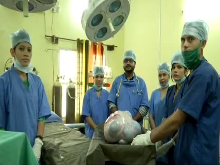 20 साल की महिला के पेट से 16 किलो का ट्यूमर निकाला, 6 घंटे चली सर्जरी; ट्यूमर के कारण चलना-फिरना हो गया था मुश्किल लाइफ & साइंस,Happy Life - Dainik Bhaskar
