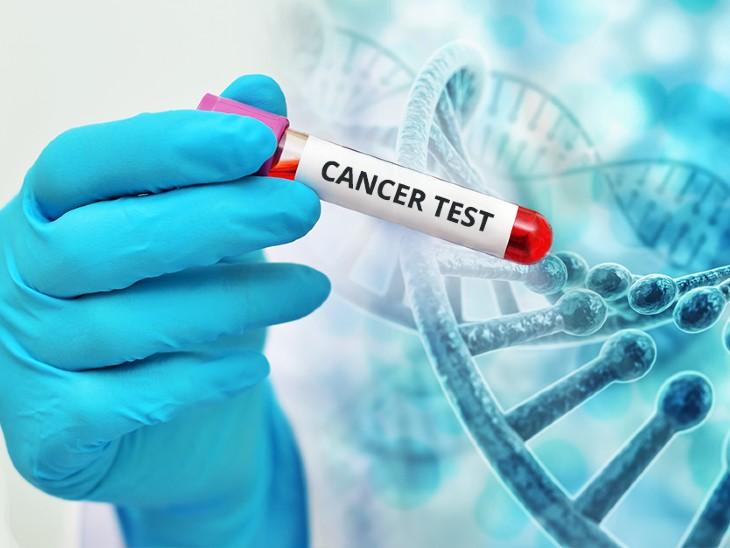 पेशाब करने में दर्द होना और स्किन पर मौजूद निशान का बढ़ना भी है कैंसर का इशारा, जानिए कैंसर का कौन सा लक्षण दिखने पर जांच कराएं लाइफ & साइंस,Happy Life - Dainik Bhaskar