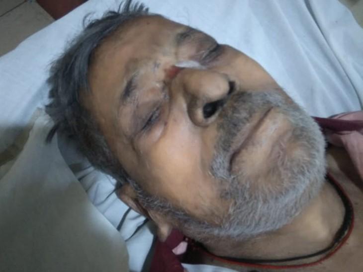 अस्पताल में ऐसी हालत हो गई कि नाक धुएं से काली पड़ गई थी। - Dainik Bhaskar
