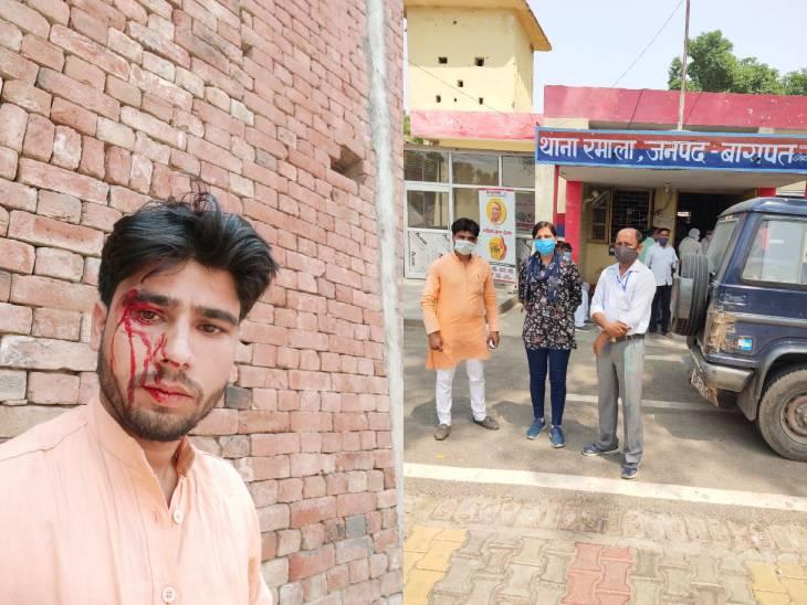 संदिग्ध संक्रमितों की जांच करने पहुंची स्वास्थ्य विभाग की टीम पर हमला, ड्राइवर की आंख बाल-बाल बची|मेरठ,Meerut - Dainik Bhaskar