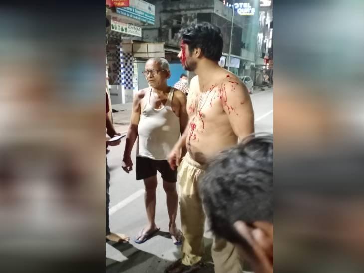 बहराइच में ADO ने शराब की दुकान पर जमकर हंगामा काटा, आस-पड़ोस वालों ने जमकर पीटा, कपड़े भी फाड़ डाले|उत्तरप्रदेश,Uttar Pradesh - Dainik Bhaskar