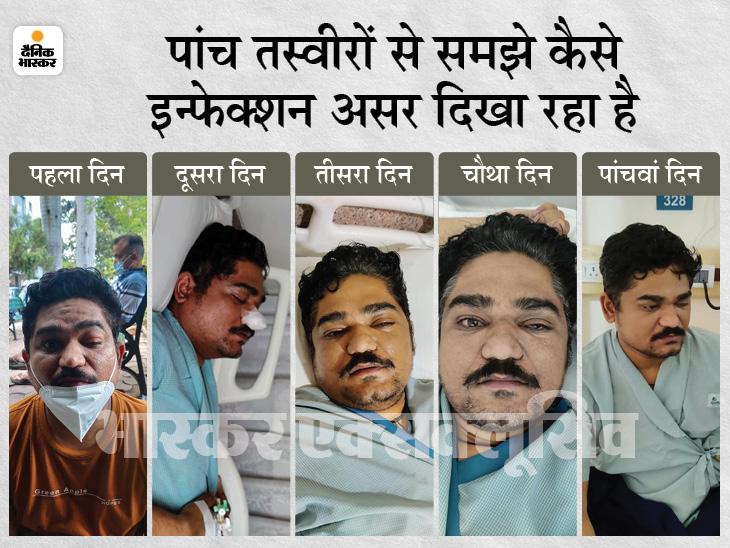 कोरोना से ठीक होने लगे थे, सिरदर्द शुरू हुआ और रोशनी कम होने लगी; अब दूसरी आंख में संक्रमण का है खतरा|मध्य प्रदेश,Madhya Pradesh - Dainik Bhaskar