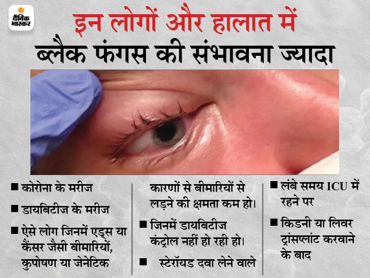 कोरोना के मरीज हो रहे इस फंगस का शिकार, आंख या जबड़ा निकालना पड़ रहा; जानिए इसके बारे में सबकुछ|ज़रुरत की खबर,Zaroorat ki Khabar - Dainik Bhaskar