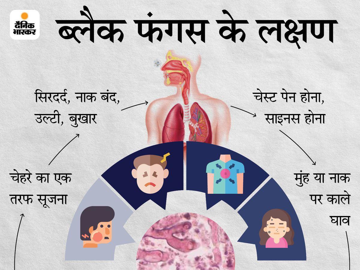 ब्लैक फंगस को लेकर हेल्थ विभाग का अलर्ट- लक्षण दिखने पर तुरंत कराएं जांच|रायपुर,Raipur - Dainik Bhaskar