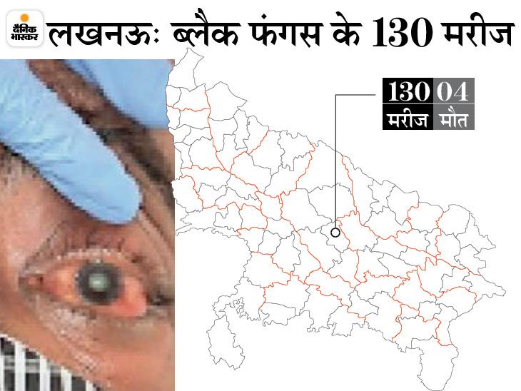 लखनऊ के KGMU में 24 घंटे में 4 की मौत, यहां अब तक 11 की मौत|उत्तरप्रदेश,Uttar Pradesh - Dainik Bhaskar