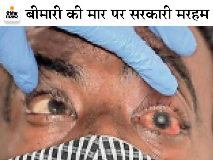 वेंटिलेटर बेड के 9900 रुपए से ज्यादा नहीं वसूल सकेंगे निजी अस्पताल, सरकार ने प्रदेश में 20 अस्पतालों को इलाज के लिए अधिकृत किया|राजस्थान,Rajasthan - Dainik Bhaskar