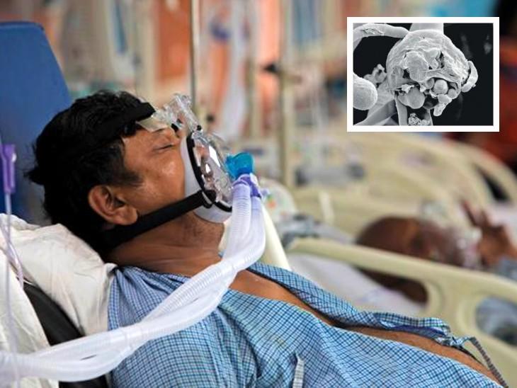 आंतों तक पहुंचा ब्लैक फंगस, दिल्ली में भर्ती दो मरीजों की आंत में फंगस ने किया छेद; दोनों में पेट दर्द के लक्षण से हुई संक्रमण की शुरुआत|लाइफ & साइंस,Happy Life - Dainik Bhaskar