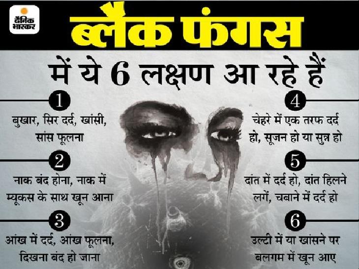 न स्टेरॉयड लिया, न ऑक्सीजन सपोर्ट; फिर भी 2 दिन की तकलीफ में रोशनी गई और आंख बाहर आने लगी|पटना,Patna - Dainik Bhaskar