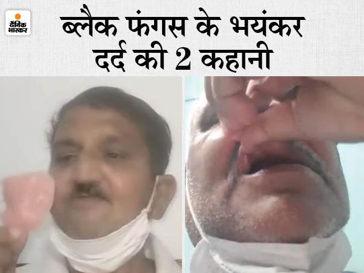 प्रशासनिक अधिकारी के दांत, जबड़ा समेत पूरा तलवा ही निकालना पड़ गया; एक स्कूल के हेडमास्टर के 10 दांत निकाले अलवर,Alwar - Dainik Bhaskar