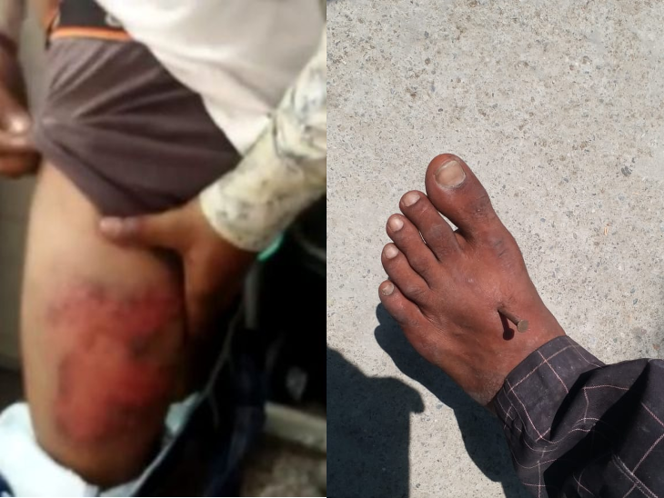 3 stories of UP police's raid: Nail in Bareilly wearing a mask in his hands  and feet; In Rae Bareli, 5 youths were kept in the post and beaten  overnight, and in