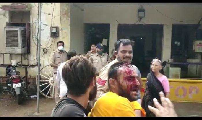 युवक का आरोप- 10 हजार रुपए नहीं देने पर एएसआई ने फोड़ा सिर, पुलिस बोली- जुआरियों को पकड़ने गए तो लोग विरोध कर थाने तक आए भोपाल,Bhopal - Dainik Bhaskar