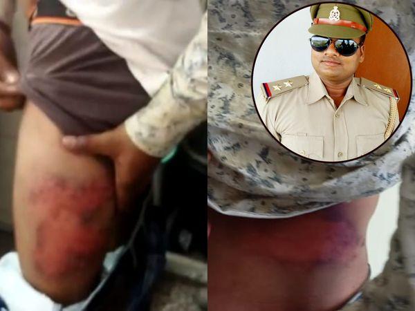 रायबरेली में चोट के निशान दिखाते युवक। आरोप है कि SI मृत्युंजय कुमार ने चौकी में रातभर बंद करके युवकों की पिटाई की है। दरोगा की फोटो इनसेट में है।