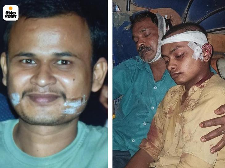 वाराणसी में मैदान में क्रिकेट और वालीबॉल खेलने को लेकर मारपीट में एक की मौत, 6 घायल; 2 दिन पहले हुई थी कहासुनी|वाराणसी,Varanasi - Dainik Bhaskar