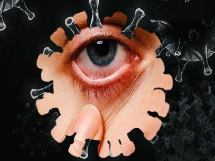 रीवा मेडिकल कॉलेज में उपचार कराने आए सतना के युवक की चिकित्सकों ने निकाली आंख, डरावना हुआ अब ब्लैक फंगस रीवा,Rewa - Dainik Bhaskar