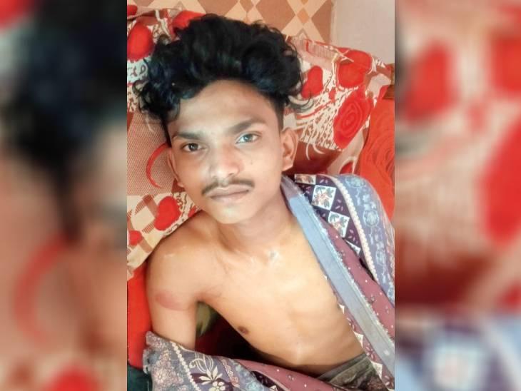 तीन युवकों से मारपीट के बाद एक का किया अपहरण, फिर बेहोश होने तक बेल्ट और लोहे के सरिए से पीटा, मोबाइल भी लूटा|जबलपुर,Jabalpur - Dainik Bhaskar
