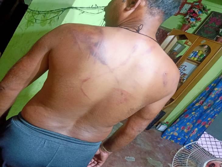 प्रधानी हमारी है अब गुंडागर्दी हमारी चलेगी...कहते हुए प्रधान पति ने दंपति को साथियों के साथ जमकर पीटा, 19 पर FIR दर्ज|कानपुर,Kanpur - Dainik Bhaskar